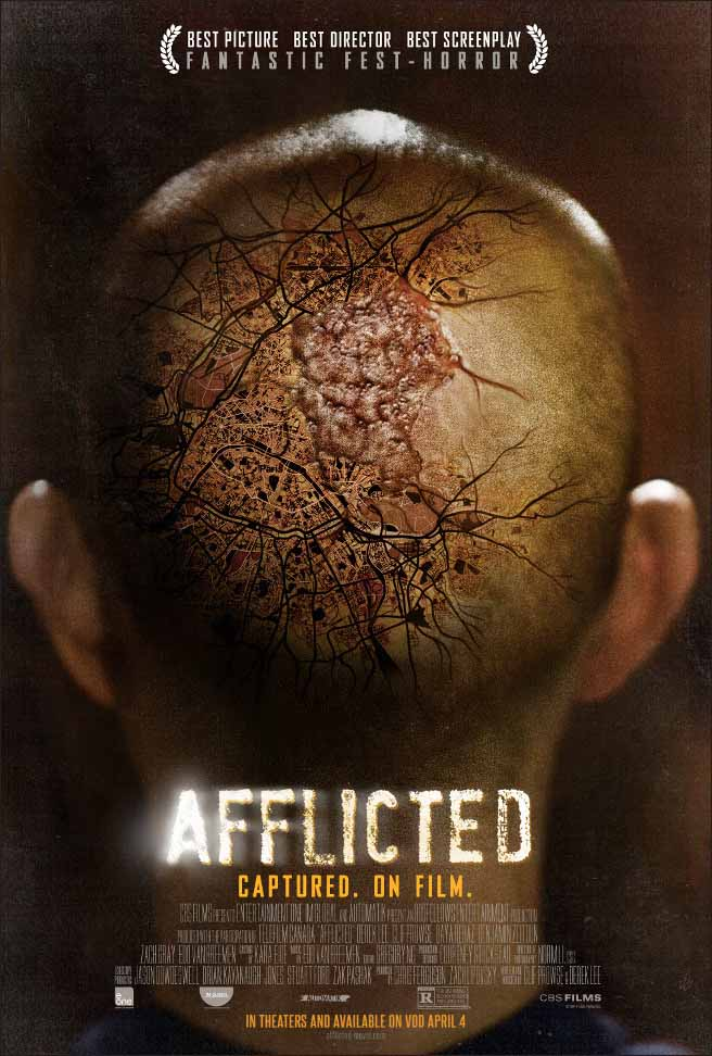 Afflicted (2013) Full Movie Poster