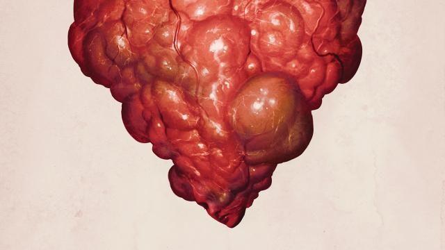 Heart-Ache Love Sick Teaser Poster